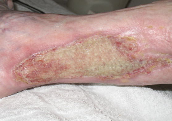 Colonized exuding wound