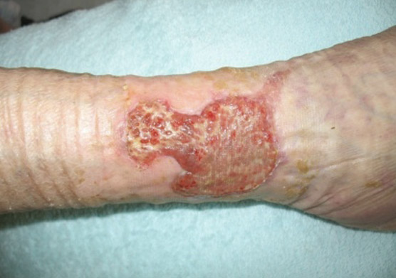 clean exuding wound