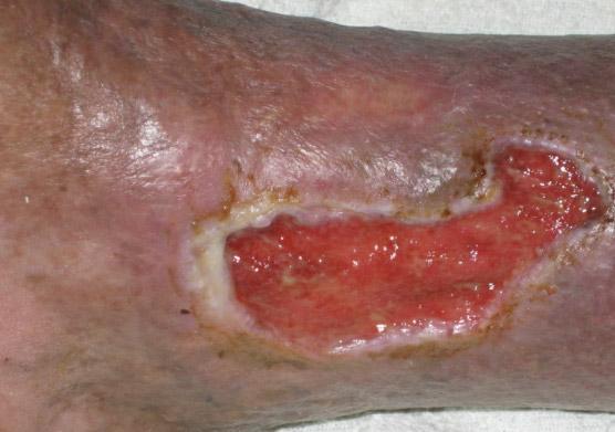 Dry detergent ulcera